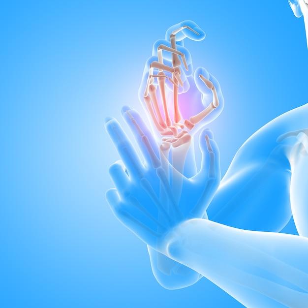 Rendering 3d di una figura medica maschile con stretta di ossa della mano Foto Gratuite