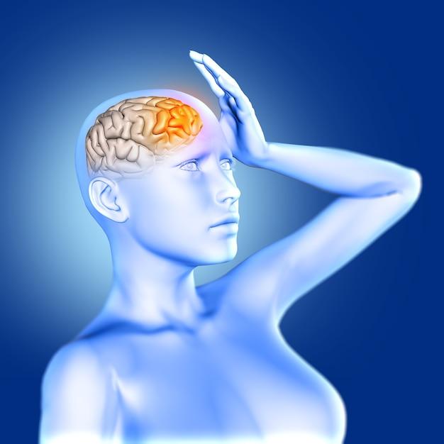 강조 두뇌와 고통에 파란색 여성 의료 그림의 3d 렌더링 프리미엄 사진