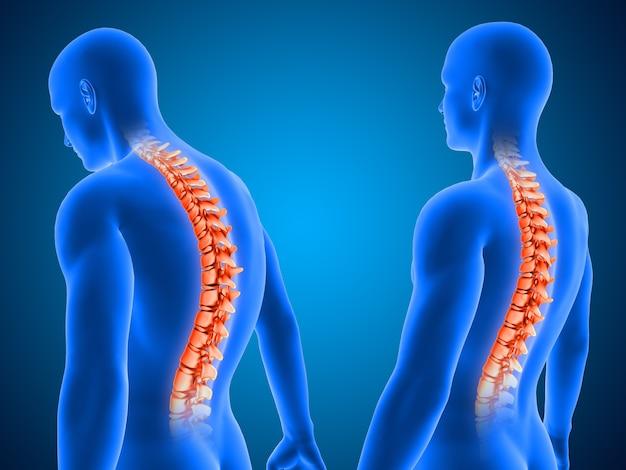 Rendering 3d che mostra una postura corretta e scorretta con la colonna vertebrale evidenziata Foto Gratuite