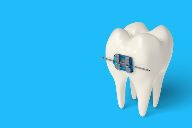 3d render tooth with ceramic and metal braces in gums Premium Photo