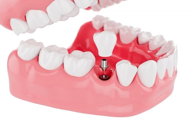 プロセスインプラント歯の健康管理を閉じます。セレクティブフォーカス。 3dレンダリング。 Premium写真