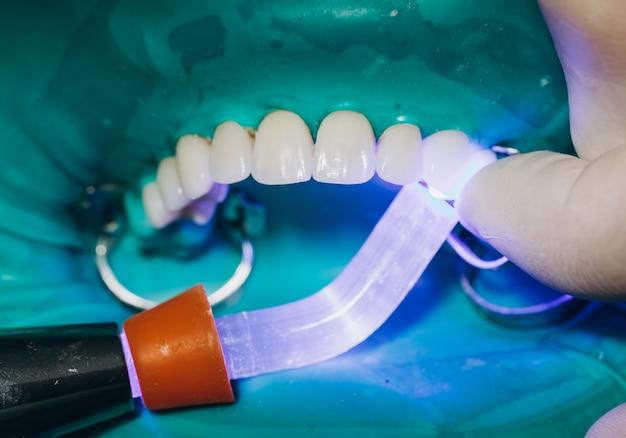 セラミック製フロントクラウン、8ユニットの歯科用ベニア Premium写真