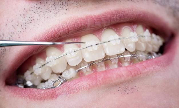 Стоматолог, проверка зубов с керамическими скобками с помощью зонда в стоматологическом кабинете. макрос выстрел из зубов с брекетами. ортодонтическое лечение. лечение зубов Premium Фотографии