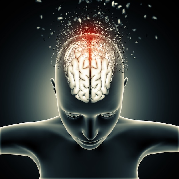 脳の崩壊と女性の医療図 無料写真