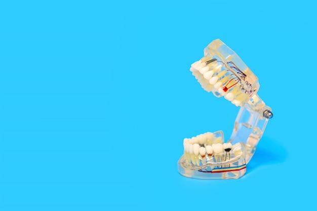 青の歯科医院への顎と歯のトレーニングモデル Premium写真