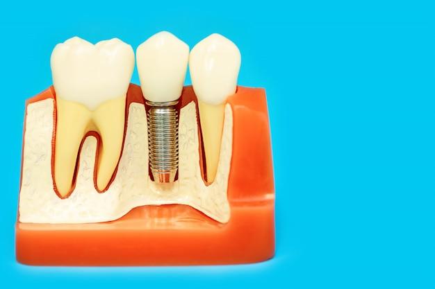 青の背景にピンの入れ歯で顎の医療モデル Premium写真