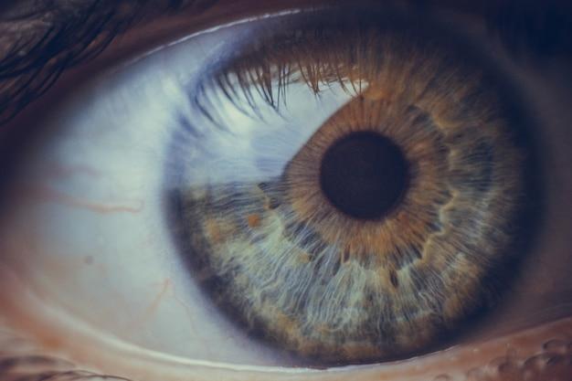 赤い血管が破裂しているマクロの目。 Premium写真