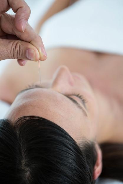 ヘルススパでの鍼治療で妊娠中の女性 Premium写真