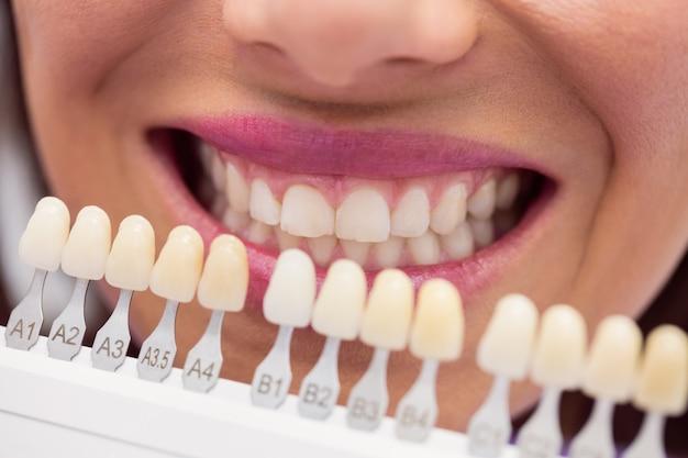 歯科医が歯の色合いを持つ女性患者を調べる 無料写真