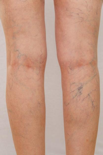 白いパンツの高齢女性は、明るい背景にセルライトと静脈瘤を示しています。 Premium写真