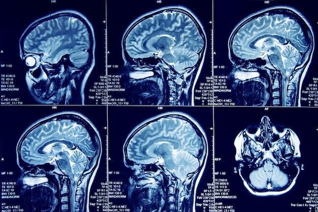 Магнитно-резонансная томография головного мозга человека в сагиттальной плоскости. Premium Фотографии
