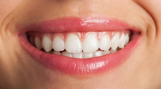 Крупным планом идеальной улыбки Бесплатные Фотографии