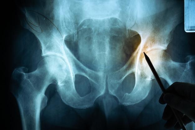 Рентгеновская пленка с рукой доктора Premium Фотографии
