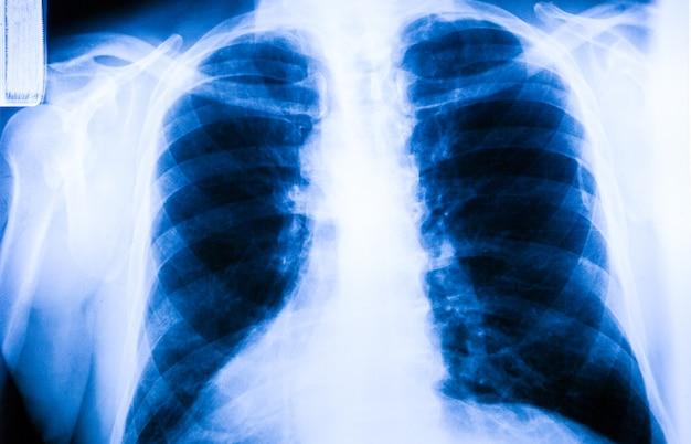Лодыжка стопы и коленного сустава рентгеновский снимок человека Premium Фотографии