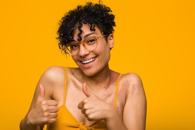 Молодая афро-американская женщина с отметкой рождения кожи поднимая как большие пальцы руки вверх, усмехающся и уверенно. Premium Фотографии