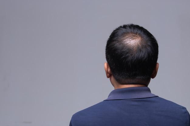 Доктор вводит лечение сывороткой, витаминами, выпадением волос Premium Фотографии