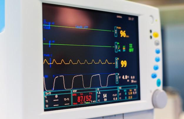 手術室のバイタルサインのモニター Premium写真