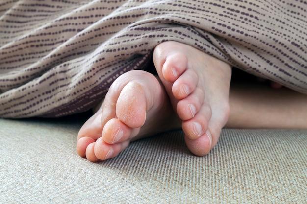 Сухая потрескавшаяся кожа ног женщины в постели. лечение ног. Premium Фотографии