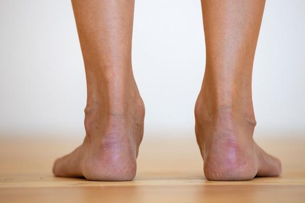 床に女性の素足。足のケアと皮膚治療の概念。 Premium写真
