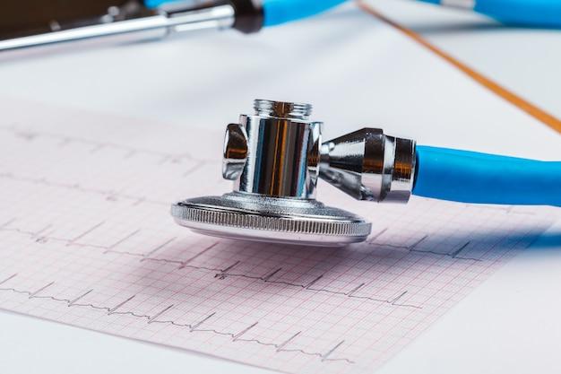 Стетоскоп на листе кардиограммы Premium Фотографии