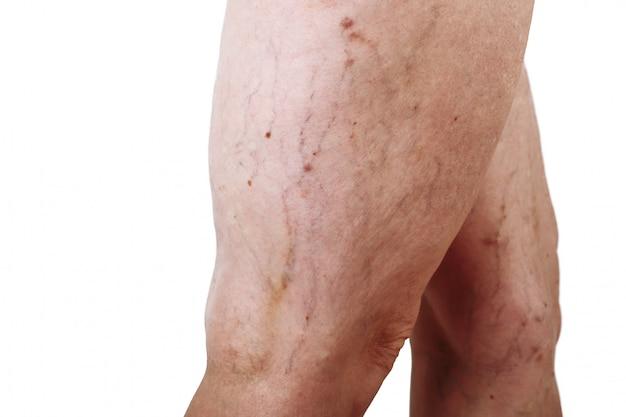 Болезнь варикозного расширения вен на ногах женщины Premium Фотографии