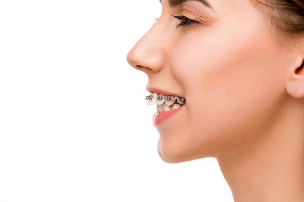 Красивая молодая женщина с брекетами зубов Бесплатные Фотографии