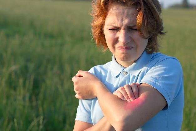 若い女性は彼女の腕を掻き、彼女の肌にかゆみに苦しみ、かゆみのある場所を掻きます。アレルギーの発疹。かゆみ領域の周りの赤、心。昆虫に対するアレルギー反応、蚊に刺される。 Premium写真