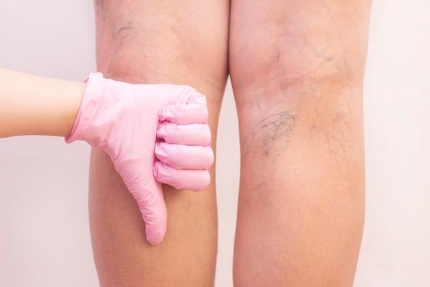 Женские ножки с варикозным расширением вен. Premium Фотографии