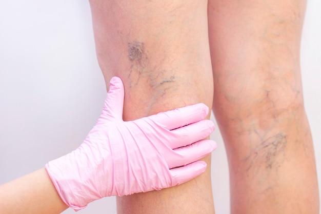 静脈瘤を持つ女性の足。 Premium写真
