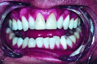 歯、白 無料写真