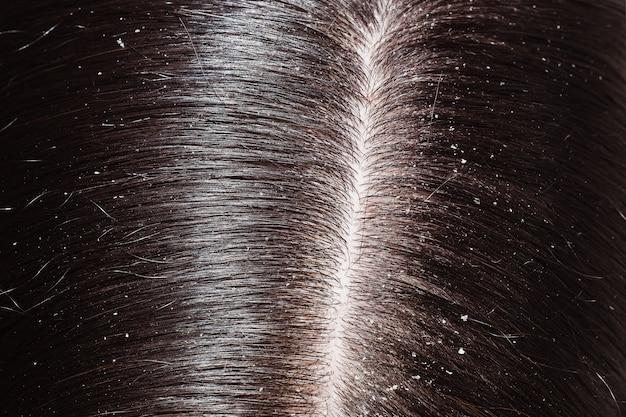 Перхоть на темных волосах женщины Premium Фотографии