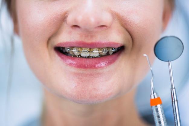 女性、歯、括弧、クローズアップ 無料写真