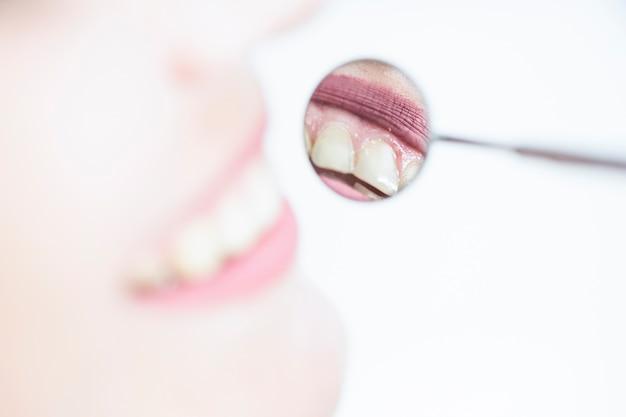 歯科医の鏡で女性の歯の反射 無料写真