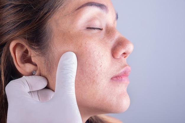 女性の顔の皮膚を閉じる Premium写真