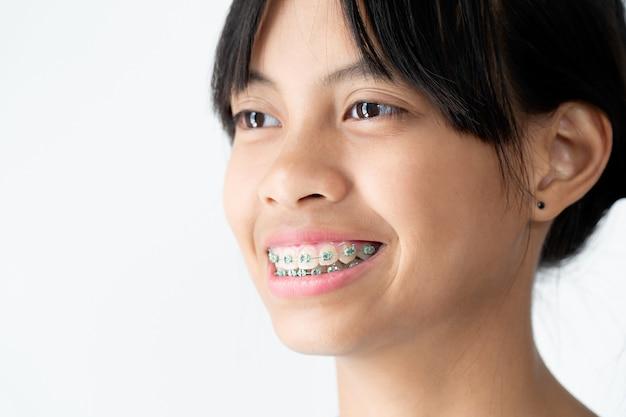 Девушка с брекетами зубов улыбается и счастлива Premium Фотографии