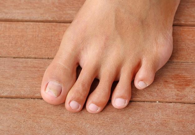 Поврежденный ноготь, сломанный гвоздь Premium Фотографии