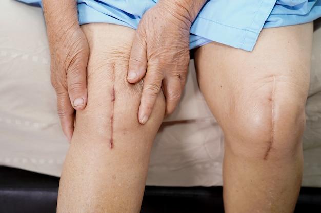 年配の女性患者は彼女の傷の外科的膝関節全置換術を示しています。 Premium写真
