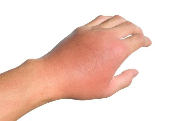 手の炎症、腫れ、発赤は感染を示しています。虫刺され。左側の蜂巣炎 Premium写真