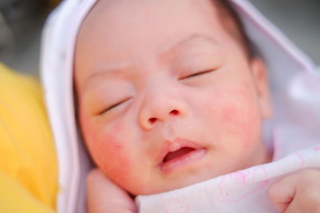 新生児のクローズアップの肖像画。顔の赤ちゃんの発疹 Premium写真