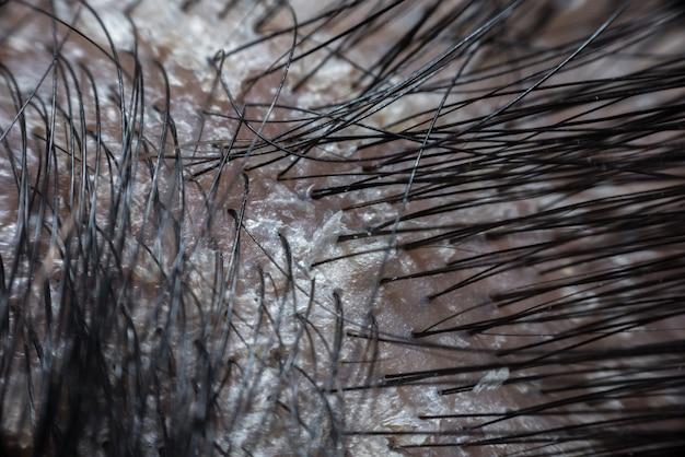 乾癬によるフケと鱗状の頭皮 Premium写真