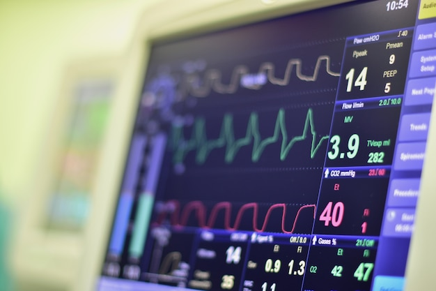 На мониторе отображается пульс сердца. Premium Фотографии
