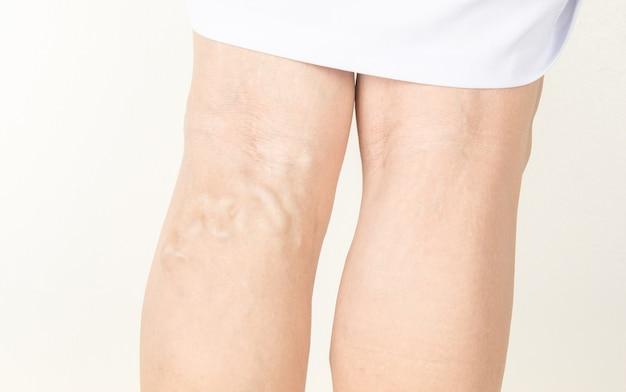 Варикозные вены у пожилых женщин Premium Фотографии