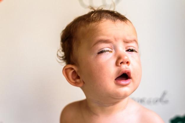 結膜炎が原因で目が赤みを帯びた赤ちゃん Premium写真