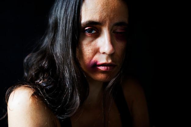 虐待された女性 無料写真