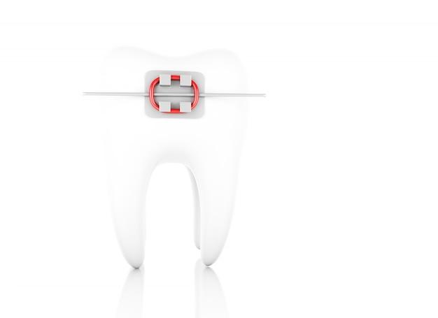 ブレース付きの歯。 Premium写真
