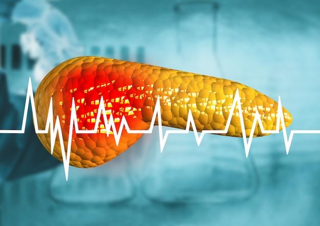 膵臓、癌と診断された人体器官、膵炎、重篤な疾患 Premium写真