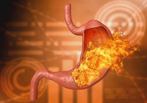 Желудок огонь. чрезмерная кислотность, расстройство желудка, заболевания желудка Premium Фотографии