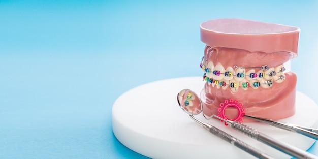 歯列矯正モデルと歯科用ツール - 歯列矯正ブラケットまたはブレースの種類のデモンストレーション歯モデル Premium写真