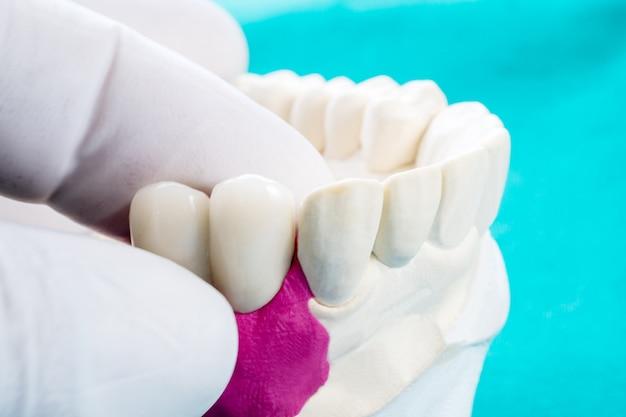 インプランモデルの歯のサポートを閉じるブリッジのインプラントとクラウンを修正。 Premium写真