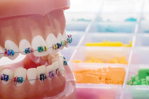 歯列矯正モデル - 歯列矯正ブラケットまたはブレースの種類の実演歯モデルを閉じる Premium写真